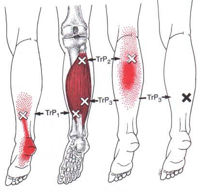 soleus-muscle-trigger-point-san-jose-roman-paradigm